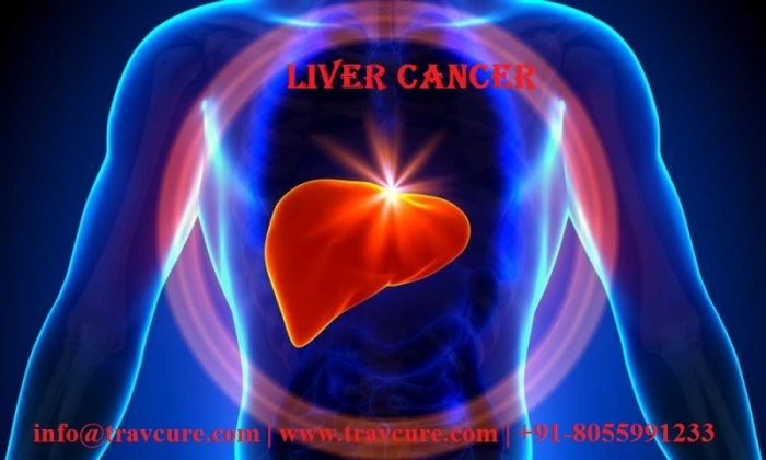 a-new-way-to-treat-liver-cancer-0df6179a